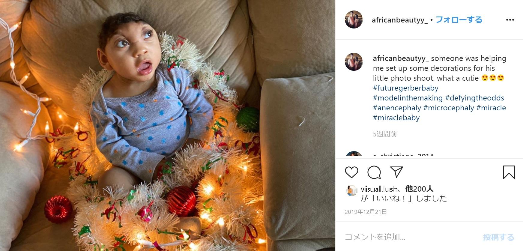 1歳2か月頃のオジー君(画像は『Moby Gordon 2019年12月21日付Instagram「someone was helping me set up some decorations for his little photo shoot.」』のスクリーンショット)