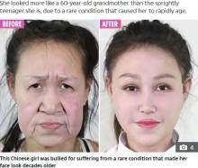 早老症で60代に見える15歳少女、手術で新しい顔を手に入れる(中国)<動画あり>