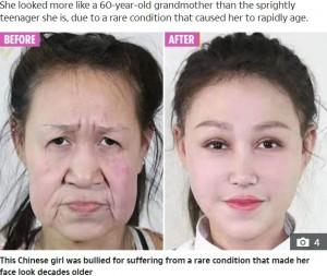【海外発!Breaking News】早老症で60代に見える15歳少女、手術で新しい顔を手に入れる(中国)<動画あり>