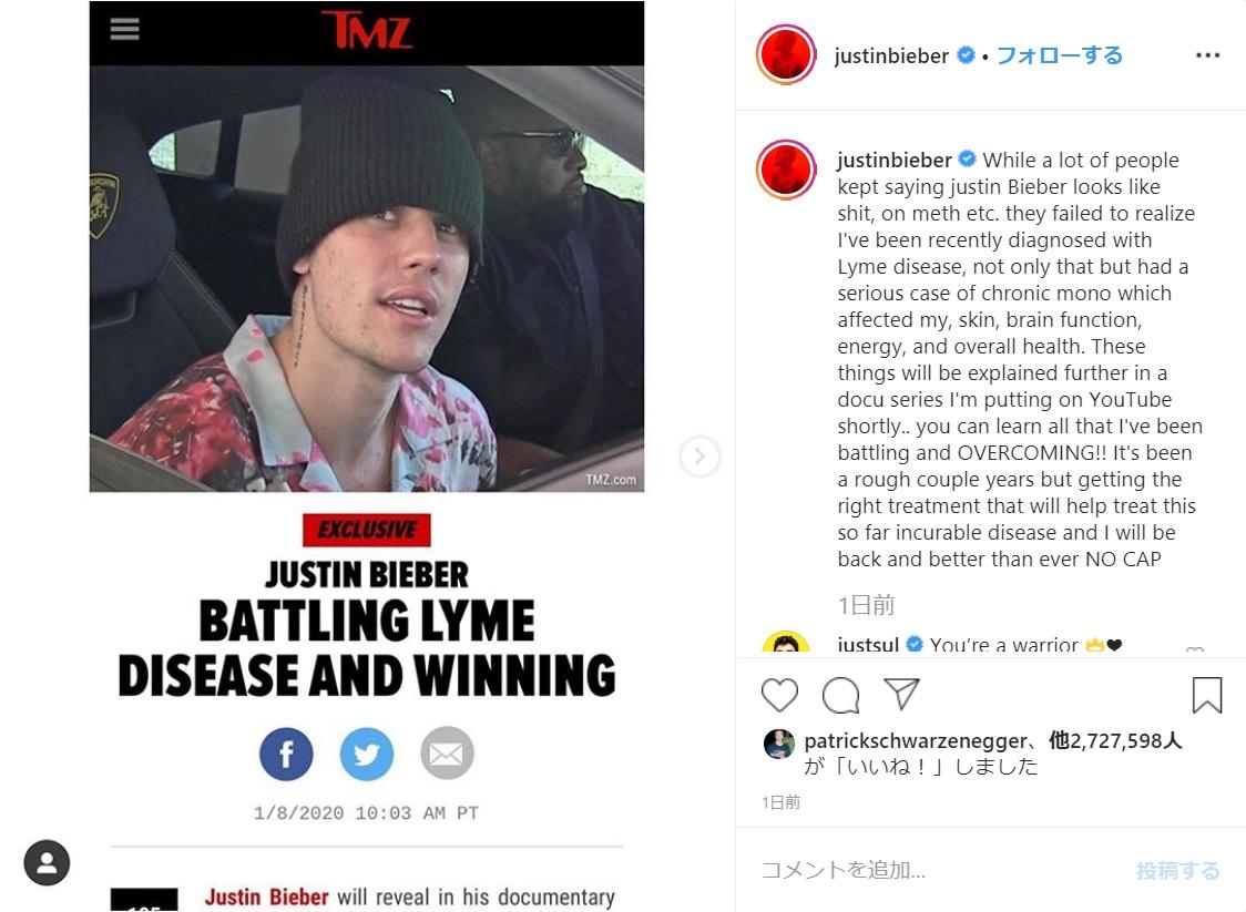 「ライム病」を告白したジャスティン・ビーバー(画像は『Justin Bieber 2020年1月8日付Instagram「While a lot of people kept saying justin Bieber looks like shit, on meth etc.」』のスクリーンショット)