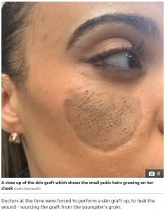 皮膚移植後の頬に毛が生えてきたクリスタルさん(画像は『The Sun 2020年1月7日付「HAIR RAISING Mum horrified when pubic hair grows on her FACE begs Botched doctors to help」(Credit: Botched/E!)』のスクリーンショット)