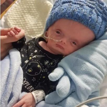 【海外発!Breaking News】脳がほとんどない状態で誕生した水頭症の男児、生後1か月に(英)