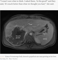【海外発!Breaking News】死を覚悟した肝臓の腫瘍 実は10年超も潜伏した寄生虫だった(カナダ)