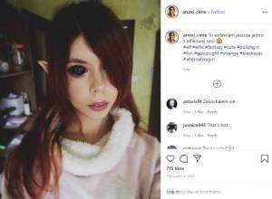 【海外発!Breaking News】眼球タトゥーで右目失明、左目も視力を失う危機にある25歳女性(ポーランド)