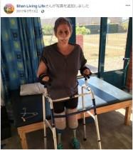 【海外発!Breaking News】マングースに噛まれた女性 鼻や口、両手両脚を失うも「前向きに生きる」(南ア)