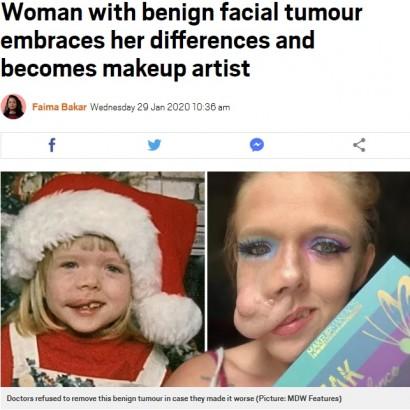 【海外発!Breaking News】顔に腫瘍がある27歳女性、大好きなメイクで動画配信「本当の美しさとは…」(米)