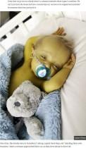 【海外発!Breaking News】皮膚が黄色い「アラジール症候群」の1歳児 両親は「この病を多くの人に知ってもらいたい」(英)