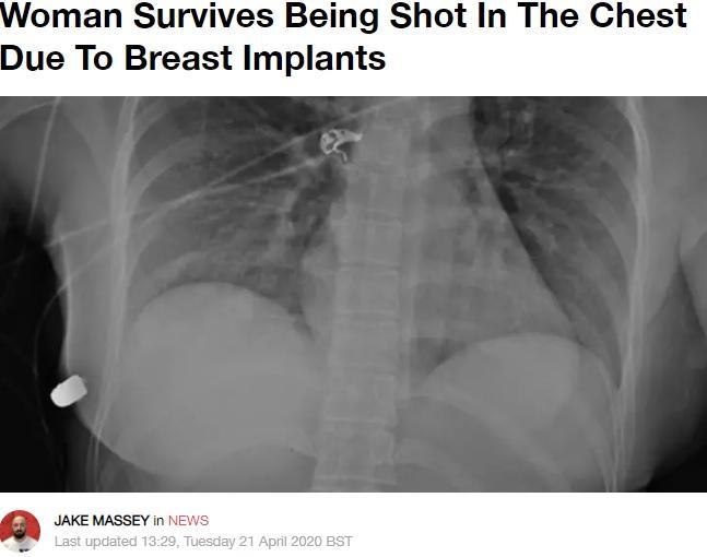 右胸下に留まった弾丸(画像は『LADbible 2020年4月21日付「Woman Survives Being Shot In The Chest Due To Breast Implants」(Credit: Plastic Surgery Case Studies/McEvenue)』のスクリーンショット)