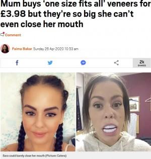 【海外発!Breaking News】約500円でネット購入した人工歯(ベニア)に大爆笑「大きすぎて口が閉まらない」(英)