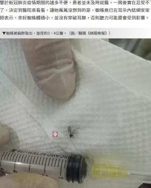 【海外発!Breaking News】女性の耳の中で糸を張るクモ 丸い目や縞の脚をカメラが捉える(中国)<動画あり>