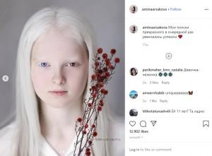 【海外発!Breaking News】瞳の色がブルー&ブラウン 神秘的な美しさを持つアルビノの11歳少女(露)