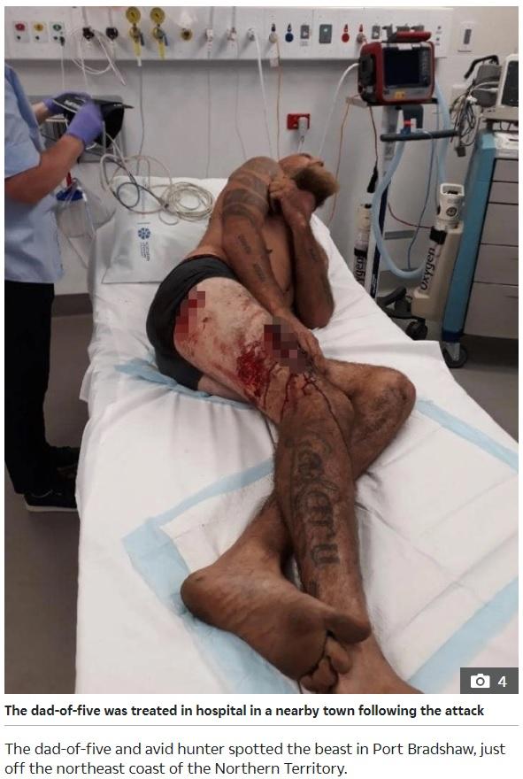 瀕死の水牛に襲われたクリスさん(画像は『The Sun 2020年6月26日付「GORE BLIMEY Massive dying buffalo wreaks final revenge on hunter with brutal attack that left him with horror wounds to leg」』のスクリーンショット)