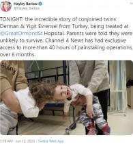 【海外発!Breaking News】頭蓋結合双生児、イギリスでの分離手術から5か月で帰国 もうすぐ2歳に(トルコ)<動画あり>