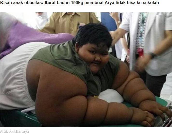 一時は193キロもあったアリヤ君(画像は『LINE TODAY 2020年1月27日付「Perjuangan Arya, anak obesitas yang berhasil turunkan bobot 110 kg selama 3 tahun」(Foto: Kompas)』のスクリーンショット)