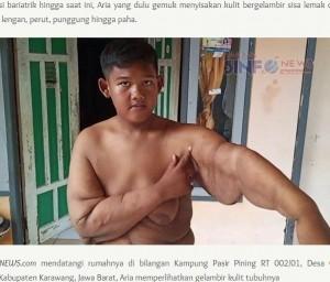 【海外発!Breaking News】元・世界一の肥満児、腕の皮膚を切除し「過去の自分は恥ずかしくない。前に進むだけ」(インドネシア)<動画あり>