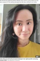 【海外発!Breaking News】アトピー性皮膚炎でステロイドを25年 副作用で地獄を見た女性(ニュージーランド)<動画あり>