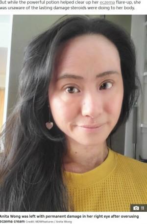 【海外発!Breaking News】アトピー性皮膚炎でステロイドを25年 副作用で地獄を見た女性(ニュージーランド)