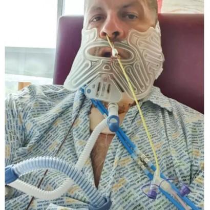 【海外発!Breaking News】「歯医者は嫌」27年間も拒み続けた男性 腫瘍が見つかりアゴを90%切除(英)