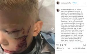 犬に襲われたブリッジャー君(画像は『Nikki Walker 2020年7月13日付Instagram「Hey, all. Please, share my nephew's story so that it gets as much exposure as it can.」』のスクリーンショット)