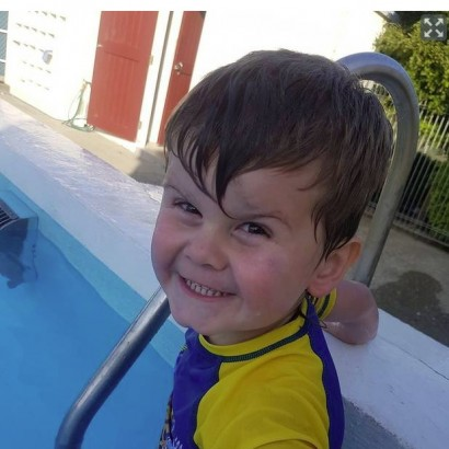 【海外発!Breaking News】親戚の飼い犬に顔を噛みちぎられた2歳児 「頬が裂け歯が見えていた」と母(ニュージーランド)