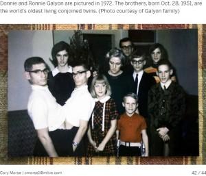 興行で一家を支えていたロニーさんとドニーさん(画像は『MLive.com 2019年4月3日付「World's oldest conjoined twins answer frequently asked questions」(Photo courtesy of Galyon family)』のスクリーンショット)
