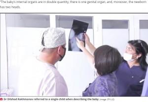 【海外発!Breaking News】頭が2つある女児が誕生 家族は「中絶すべきだった」と発言し物議(ウズベキスタン)