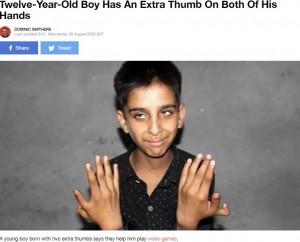 【海外発!Breaking News】12本の手指を持つ少年、将来の夢は「医者になって同じ疾患を持つ人を治療したい」(印)