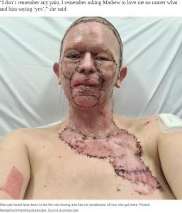 皮膚移植をして4日後のヘイリーさん(画像は『News.com.au 2020年8月20日付「Woman's face 'burned off' in unexplained accident with campfire」(Picture: MediaDrumWorld/Australscope)』のスクリーンショット)