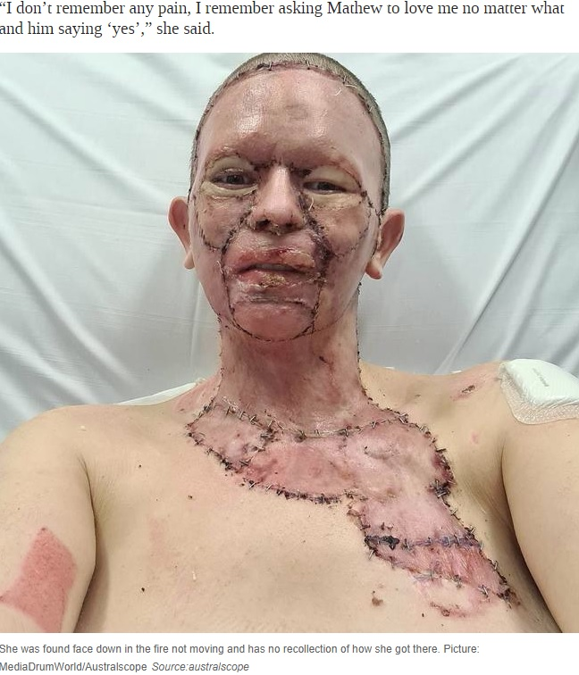皮膚移植をして4日後のヘイリーさん(画像は『News.com.au 2020年8月20日付「Woman's face 'burned off' in unexplained accident with campfire」(Picture: MediaDrumWorld/Australscope)』のスクリーンショット)