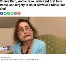 【海外発!Breaking News】米国初の顔面移植手術を受けた女性が死去 「心が美しい人だった」と医師<動画あり>