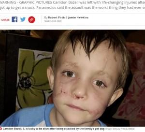 今でも顔に傷が残るカムデン君(画像は『Mirror 2020年8月6日付「Boy, 6, mauled by 'lovable' family dog who ripped his face apart in fit of rage」(Image: Mercury Press & Media)』のスクリーンショット)