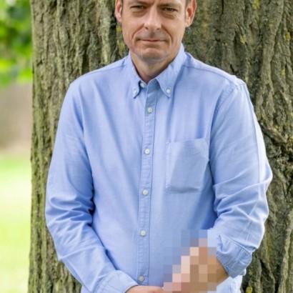 【海外発!Breaking News】敗血症で股間が壊疽した男性 前腕に人工陰茎を移植も4年間ぶらさがったまま(英)