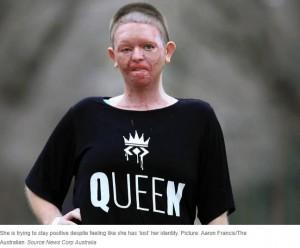 現在のヘイリーさん(画像は『News.com.au 2020年8月20日付「Woman's face 'burned off' in unexplained accident with campfire」(Picture: Aaron Francis/The Australian)』のスクリーンショット)