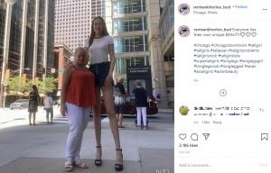 【海外発!Breaking News】身長205センチ、脚の長さ134センチ 世界一長い脚を主張する女性「今の自分が好き」(韓国)<動画あり>