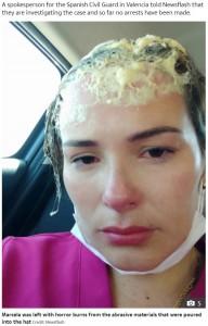 接着剤によって頭皮に火傷を負ったマルセラさん(画像は『The Sun 2020年7月30日付「RANDOM ATTACK Woman suffers horror burns after stranger slaps glue-filled hat on her head in brutal doorstep attack」(Credit: Newsflash)』のスクリーンショット)