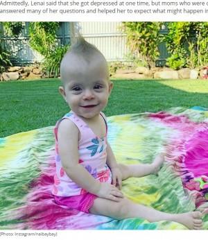 【海外発!Breaking News】身体の1.5倍の腫瘍を抱え「死産の可能性が高いから中絶を」と言われた赤ちゃんが1歳に(豪)