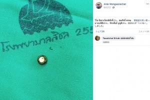 【海外発!Breaking News】3歳娘の異臭を感じた母親 鼻の奥に腕時計の電池が詰まっていたことが判明(タイ)