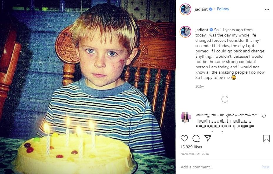 火傷する前、当時4歳のジョンさん(画像は『Johnny 2014年11月21日付Instagram「So 11 years ago from today」』のスクリーンショット)