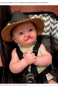 口唇裂で生まれたベントレー君(画像は『Washington Post 2020年9月10日付「A puppy with a cleft lip is adopted by a boy with a cleft lip: 'They instantly loved each other'」(Family photo)』のスクリーンショット)