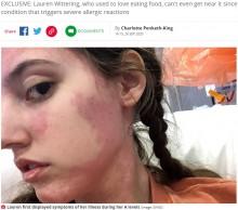 【海外発!Breaking News】全ての食品にアレルギー反応を起こしてしまう女性 食べ物の匂いでも重度の症状に苦しむ(英)