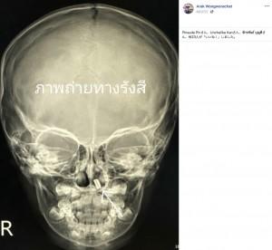 X線写真に写った小さな電池(画像は『Arak Wongworachat 2020年8月27日付Facebook「#เด็ก3ขวบเอาแบตเตอรี่นาฬิกาใช้แล้วใส่จมูก」』のスクリーンショット)