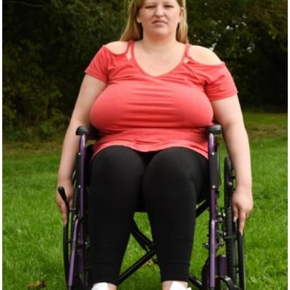 【海外発!Breaking News】Rカップの重みで背骨が湾曲、車椅子生活になってしまった女性(英)