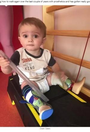 【海外発!Breaking News】「助かる確率は0.1%」敗血症で両脚を切断した2歳男児が三輪車に乗れるように(ポーランド)