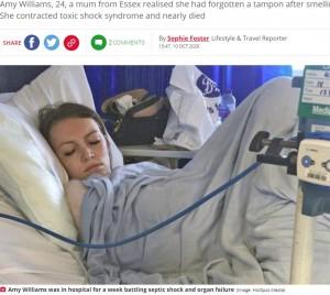 【海外発!Breaking News】タンポンを5日間入れっぱなしにした女性 感染症で瀕死の状態に(英)