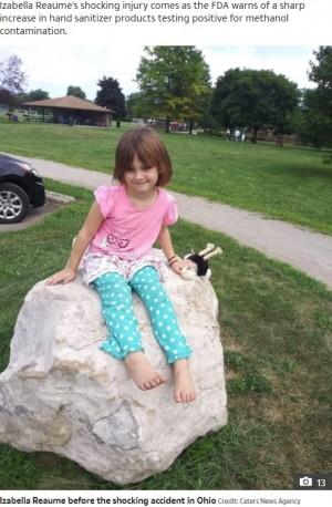 【海外発!Breaking News】手指消毒剤で遊んでいた6歳女児が顔に火傷 ライターの火が引火「消毒剤はあっという間に燃え広がる」母親が警鐘鳴らす(米)