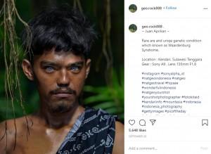 ワールデンブルグ症候群の特徴的な青い瞳を持つ男性(画像は『Korchnoi Pasaribu 2020年9月25日付Instagram「~ Juan Aprilian ~」』のスクリーンショット)