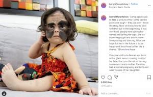 【海外発!Breaking News】顔に大きなあざを持つ女児 ロシアでの手術は苦難続きも両親は「私たちは最高に幸せ」(米)<動画あり>
