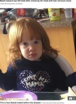 【海外発!Breaking News】脱毛クリームを頭に塗りたくった1歳児 おでこ面積が広がりツルツルに「これは喜劇よ!」(英)