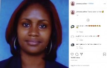【海外発!Breaking News】「私の顔を奪っても、人生は奪えない」SNSで訴える酸攻撃の被害女性がインフルエンサーに(ドミニカ共和国)