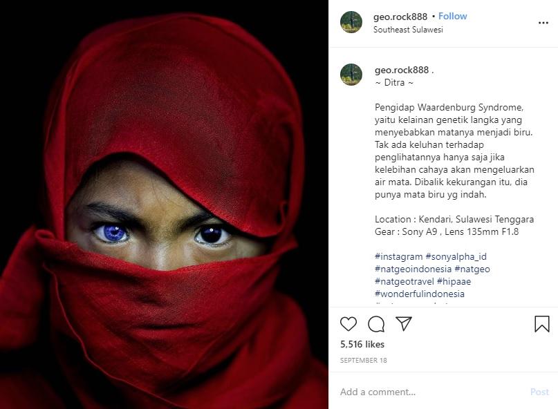 左右の瞳の色が違う少女(画像は『Korchnoi Pasaribu 2020年9月18日付Instagram「~ Ditra ~」』のスクリーンショット)